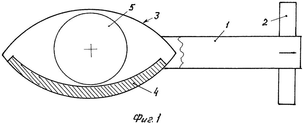 Гранатометный комплекс бокового поражения (варианты)