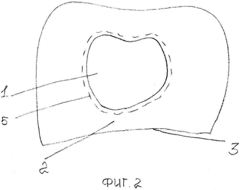 Контролируемый способ подготовки спаиваемых поверхностей несъемных зубных протезов