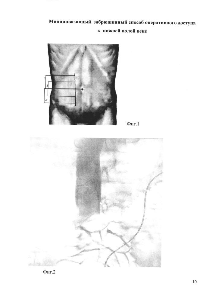 Миниинвазивный забрюшинный способ оперативного доступа к нижней полой вене