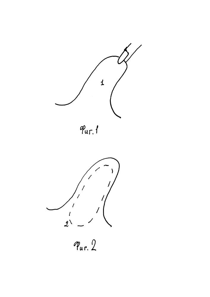 Способ трансперитонеальной лапароскопической герниопластики с рассечением грыжевого мешка