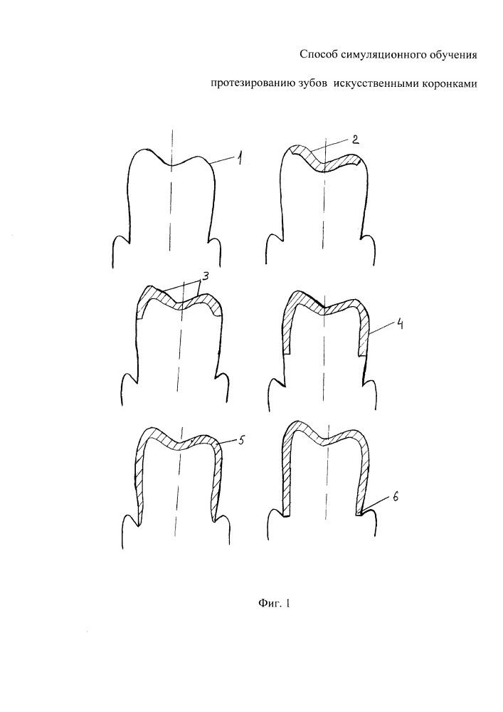 Способ симуляционного обучения протезированию зубов искусственными коронками