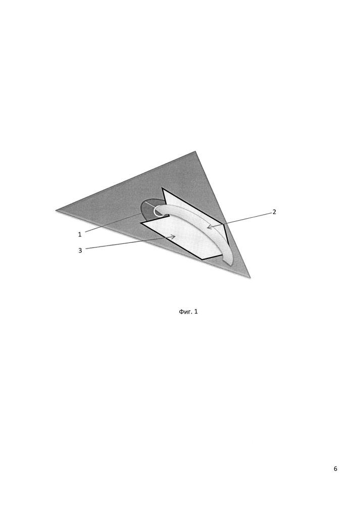 Способ профилактики спаечного процесса семенного канатика с аллотрансплантатом при грыжесечении по способу лихтенштейна