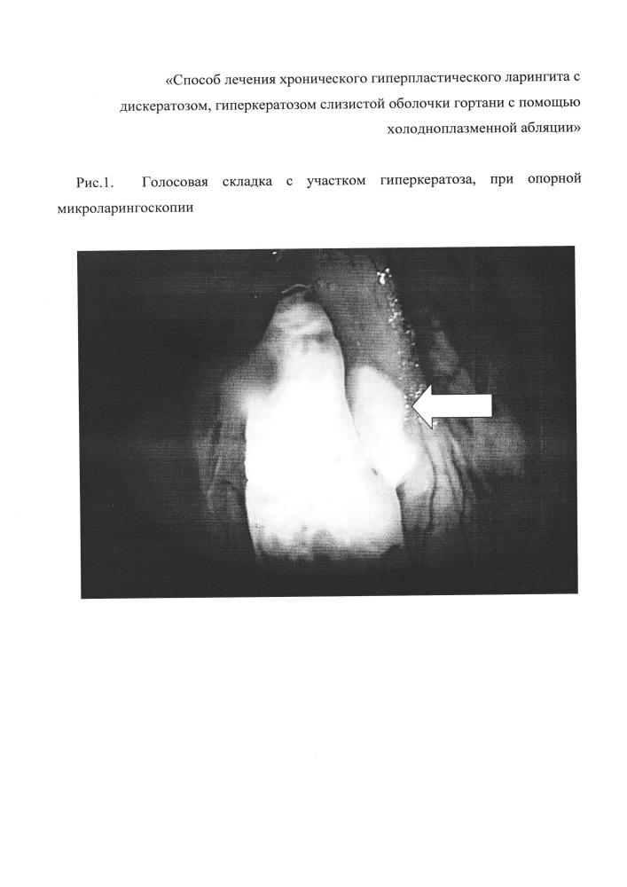 Способ лечения хронического гиперпластического ларингита с дискератозом, гиперкератозом слизистой оболочки гортани с помощью холодноплазменной абляции