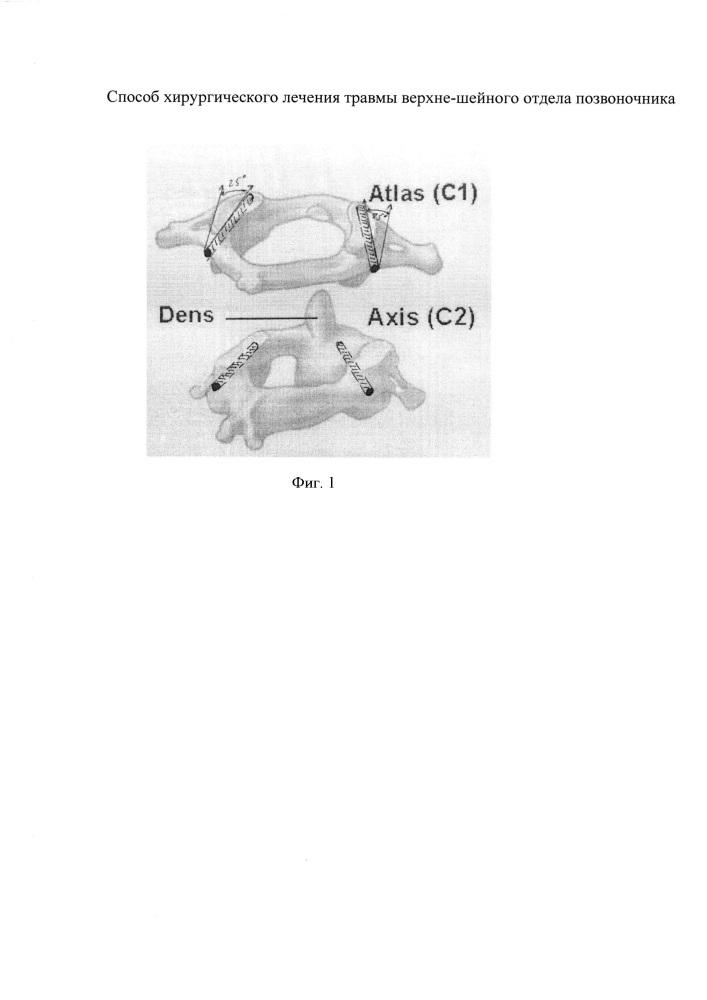 Способ хирургического лечения верхнешейного отдела позвоночника