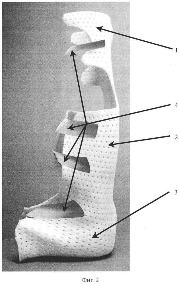Комплект модулей-ортезов для лечения пациентов с генерализованным детским церебральным параличом