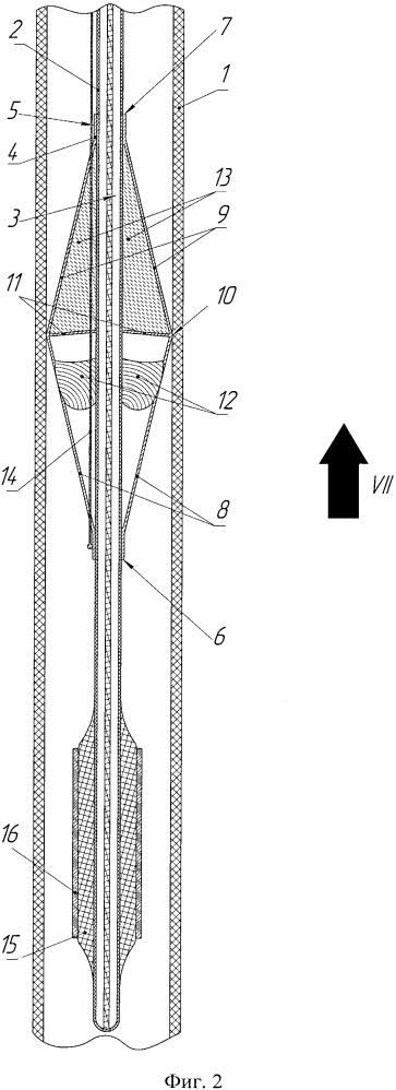 Аортальный фильтр-клапан