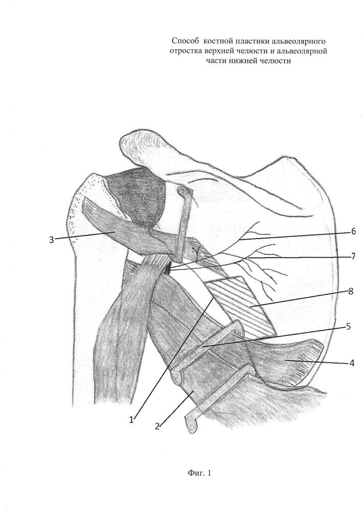 Способ костной пластики альвеолярного отростка верхней челюсти и альвеолярной части нижней челюсти