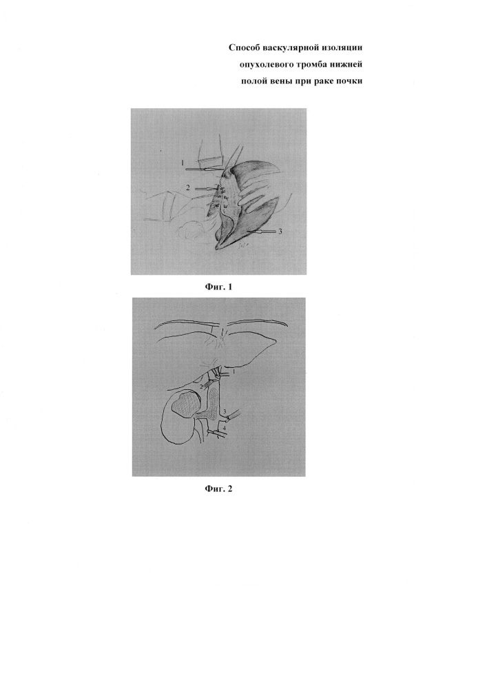 Способ васкулярной изоляции опухолевого тромба нижней полой вены при раке почки