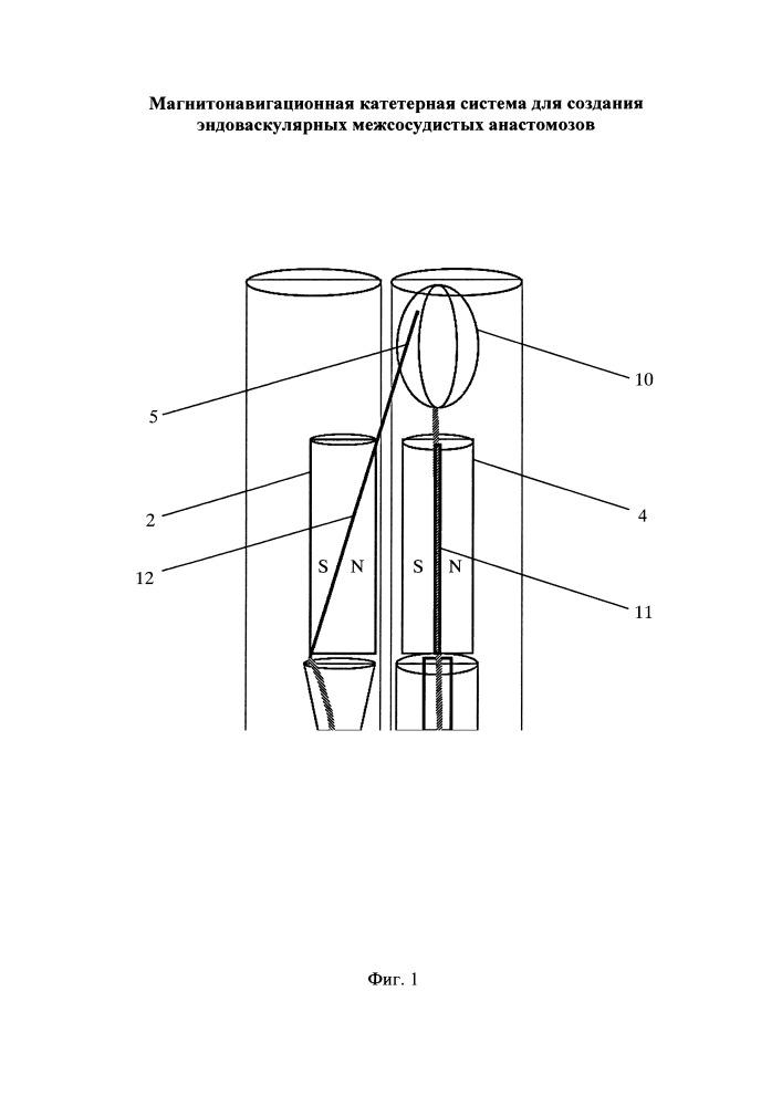Магнитонавигационная катетерная система для создания эндоваскулярных межсосудистых анастомозов