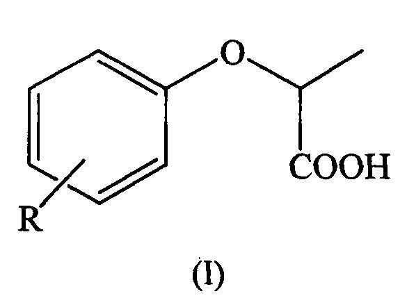 Способ получения производных 2-(хлорфенокси)-пропионовой кислоты