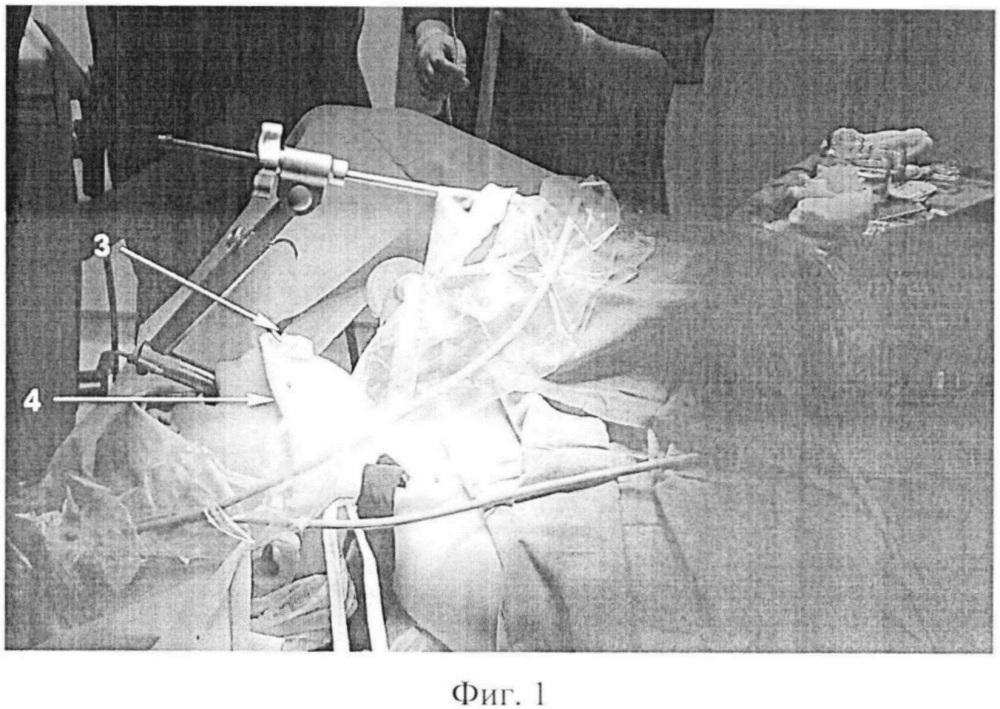 Способ интраоперационной навигации в хирургическом лечении органов шеи