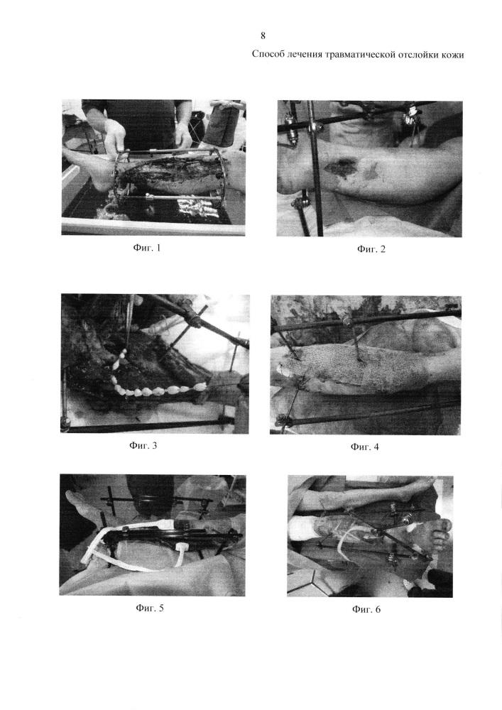 Способ лечения травматической отслойки кожи