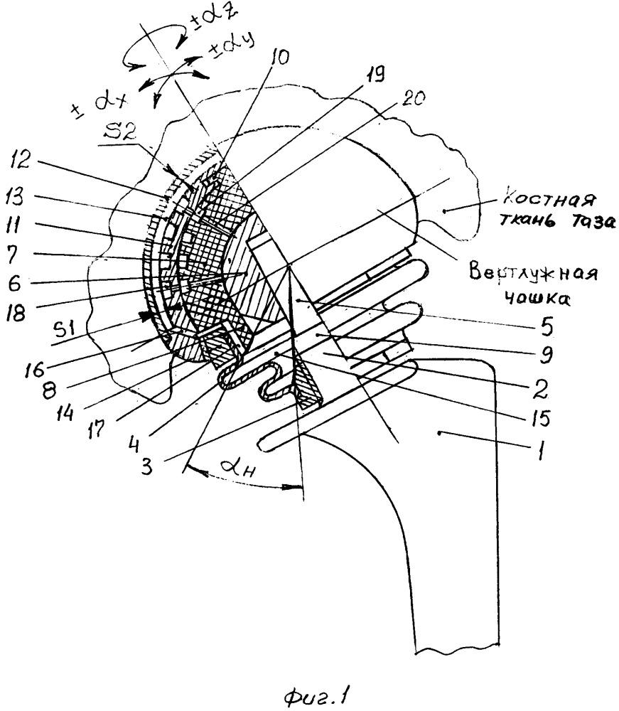 Биартикулярный жидкостно-циркуляционный анатомически адаптируемый эндопротез тазобедренного сустава