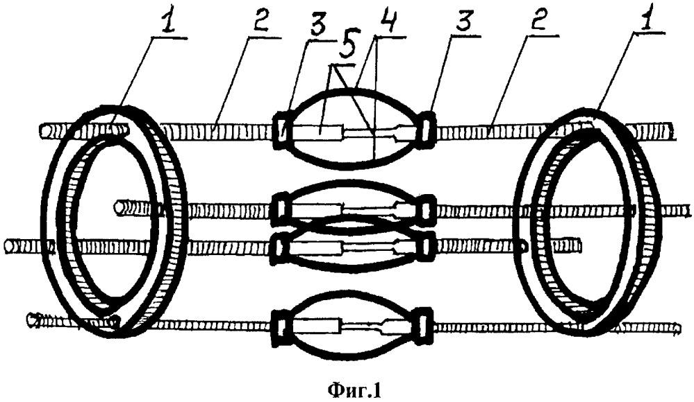 Компрессионно-дистракционный аппарат