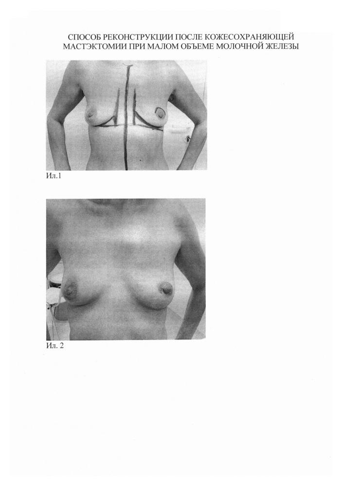 Способ реконструкции после кожесохраняющей мастэктомии при малом объеме молочной железы