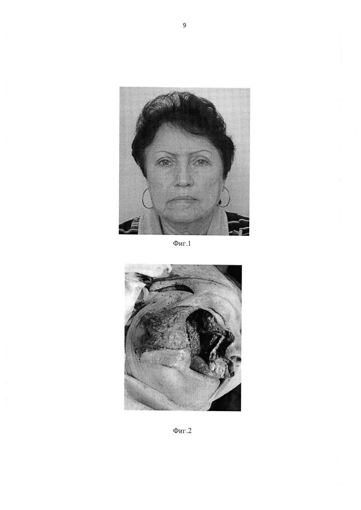 Способ восстановления средней зоны лица после резекции или травматического повреждения