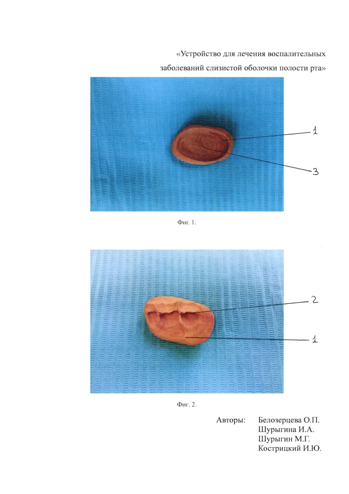 Устройство для лечения воспалительных заболеваний слизистой оболочки полости рта