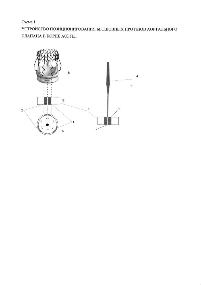 Устройство позиционирования бесшовных протезов аортального клапана в корне аорты