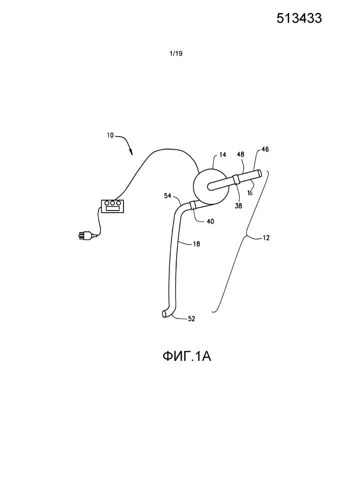 Система и способ повышения наружного диаметра вен и артерий