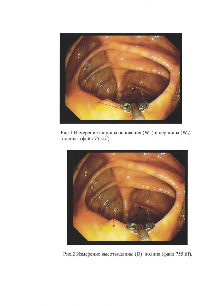 Способ измерения размеров объектов пищеварительного тракта по эндоскопической фотографии