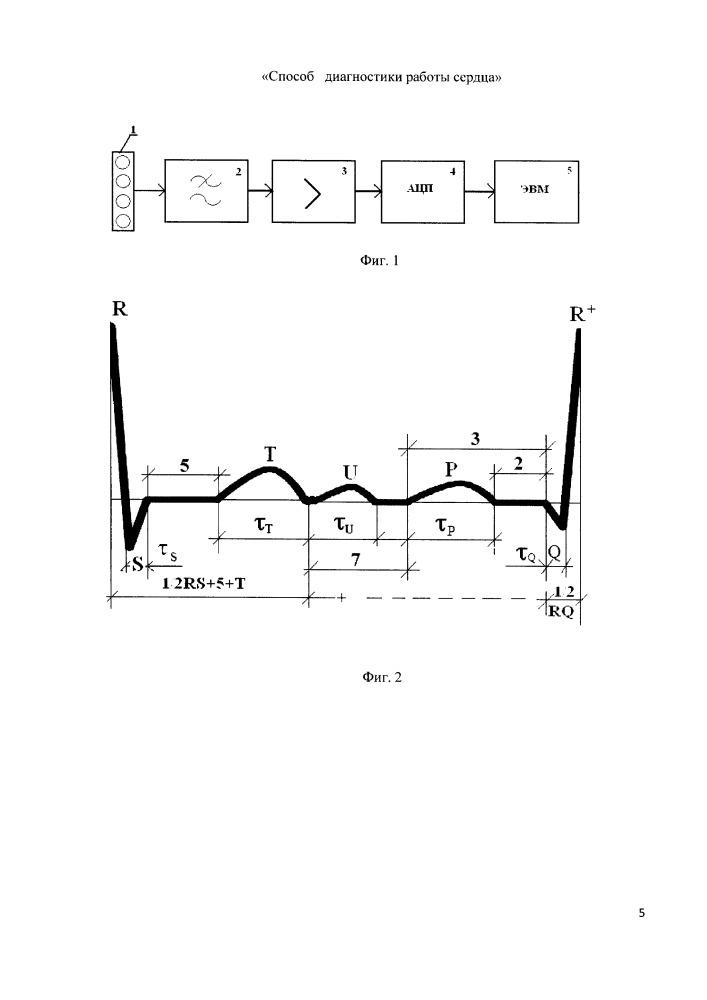 Способ определения длительности импульсов экг