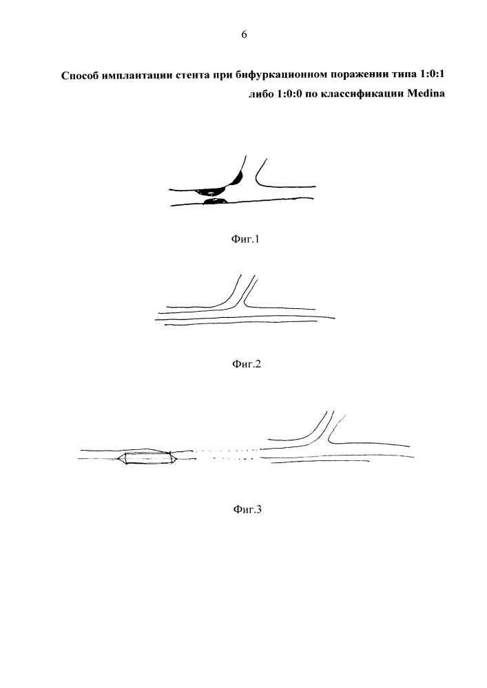 Способ имплантации стента при бифуркационном поражении типа 1:0:1 либо 1:0:0 по классификации medina