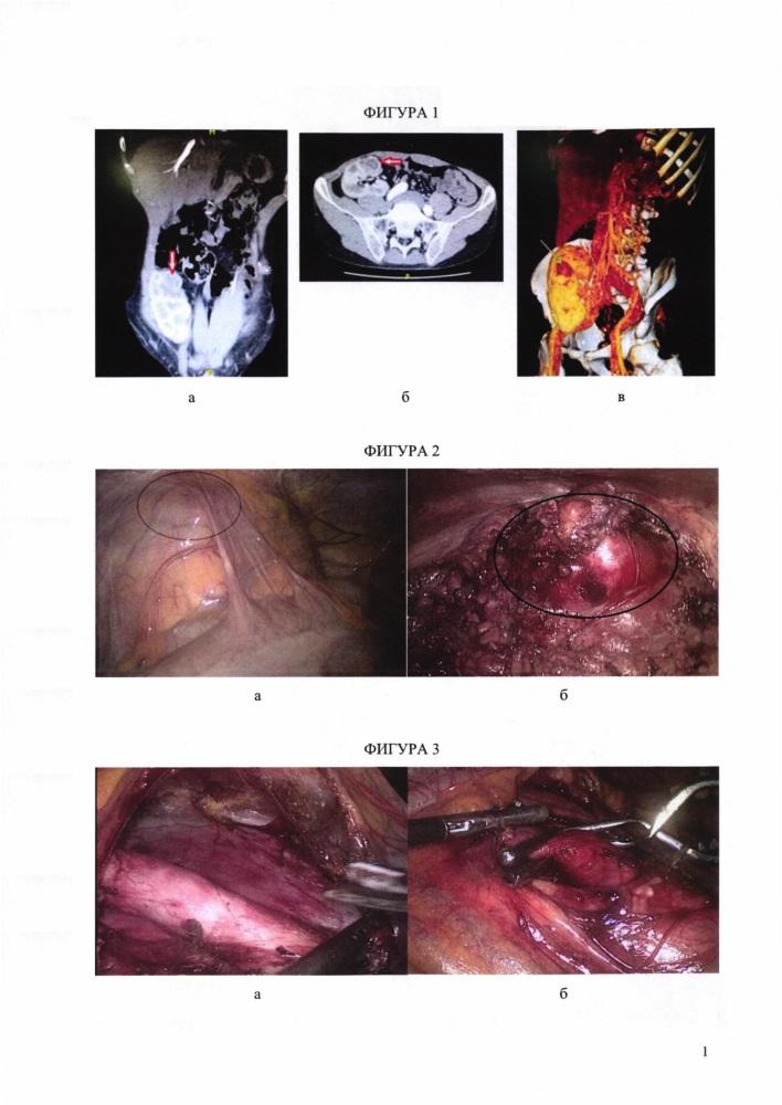 Способ временного гемостаза при лапароскопической резекции трансплантата почки