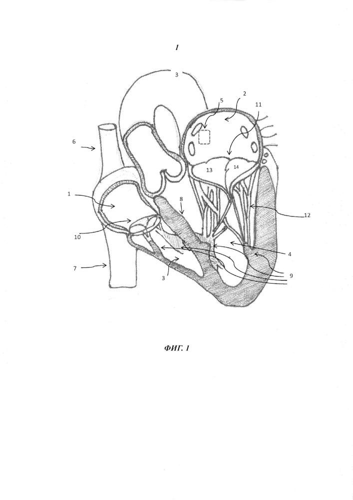 Протез клапана, устанавливаемый посредством катетера, и соответствующий способ