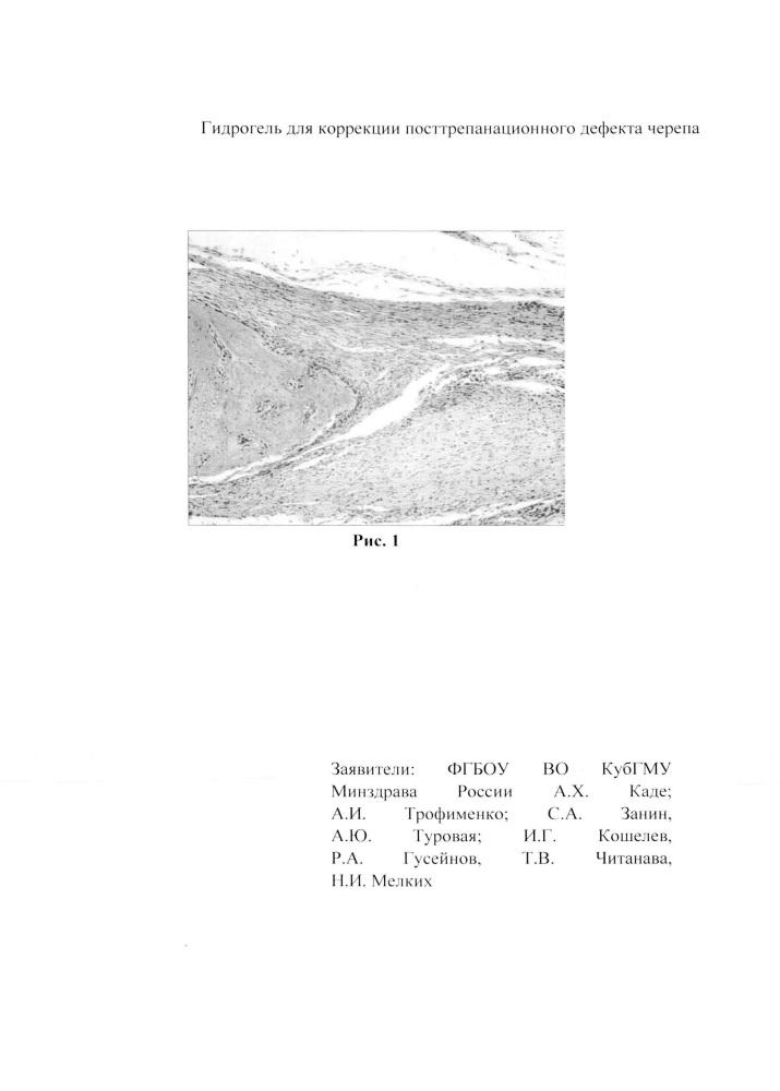 Гидрогель для коррекции посттрепанационного дефекта черепа