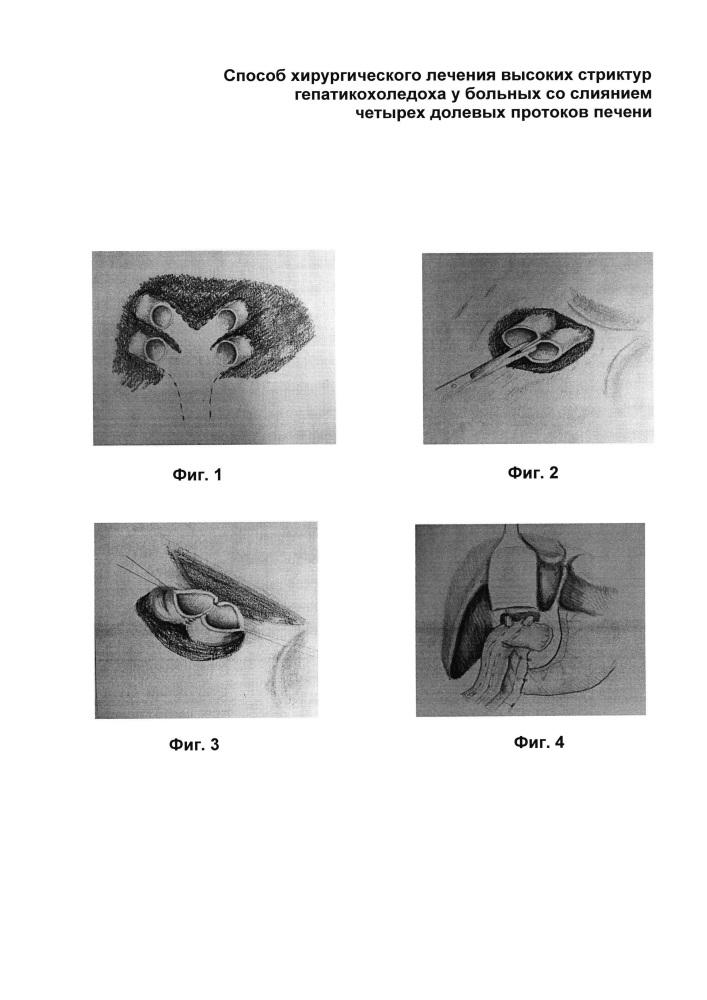 Способ хирургического лечения высоких стриктур гепатикохоледоха у больных со слиянием четырех долевых протоков печени