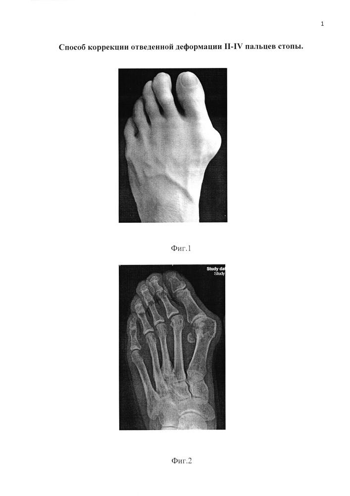 Способ коррекции отведенной деформации ii-iv пальцев стопы