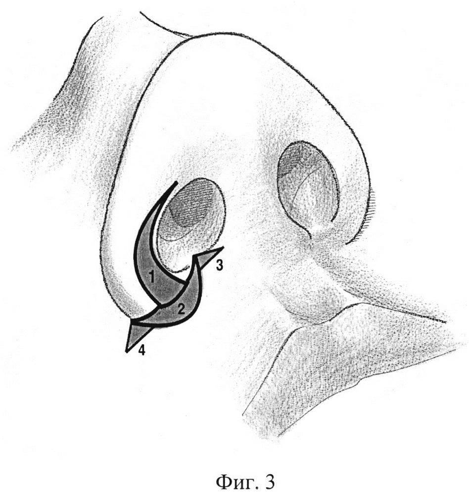 Способ коррекции основания и крыльев носа