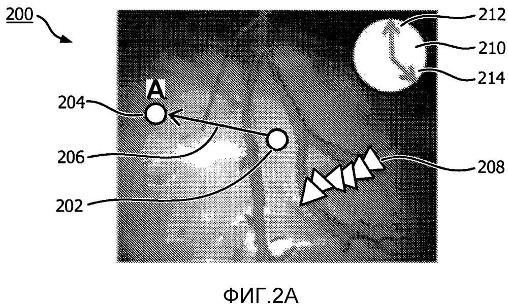 Инструменты наведения для ручного управления эндоскопом с помощью 3d-изображений, полученных до операции и во время операции