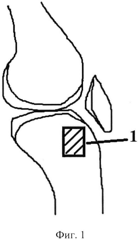 Способ моделирования внутрисуставного импрессионного перелома проксимального отдела большеберцовой кости