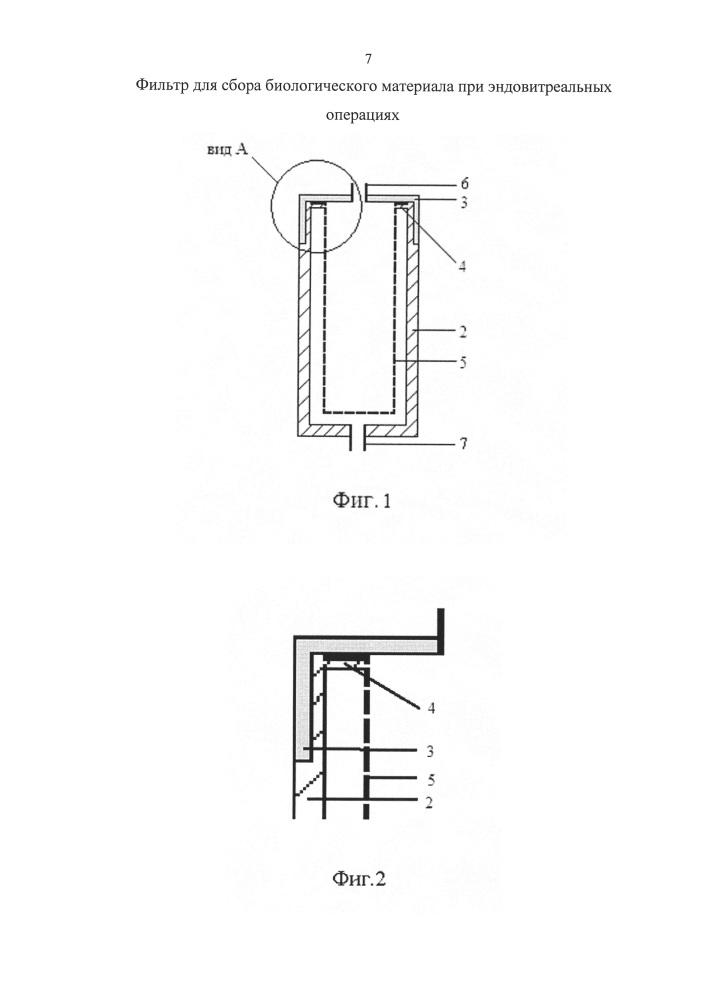 Фильтр для сбора биологического материала при эндовитреальных операциях