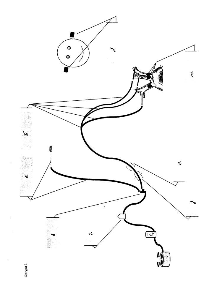 Способ перфузии при тотальных реконструкциях на дуге аорты