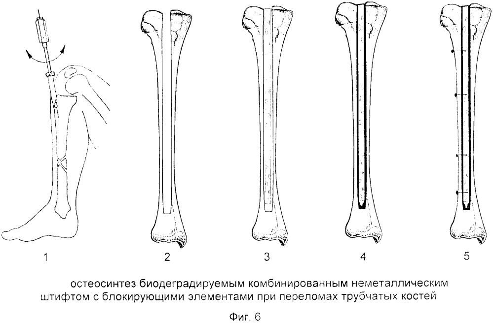 Способ остеосинтеза переломов трубчатых костей