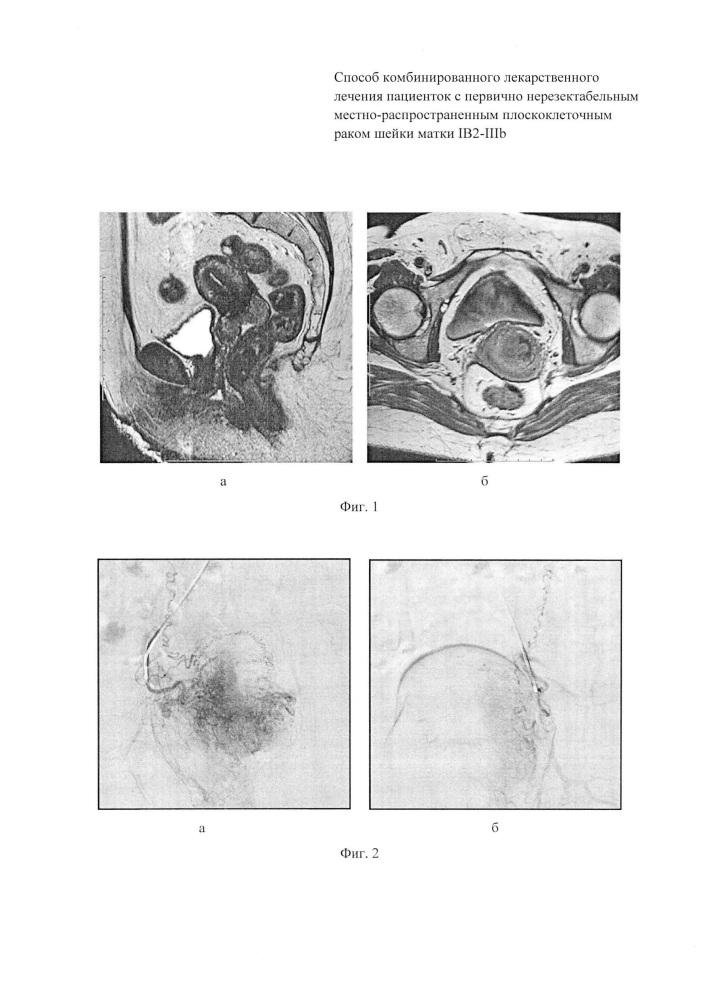 Способ комбинированного лекарственного лечения пациенток с первично нерезектабельным местно-распространенным плоскоклеточным раком шейки матки ib2-iiib