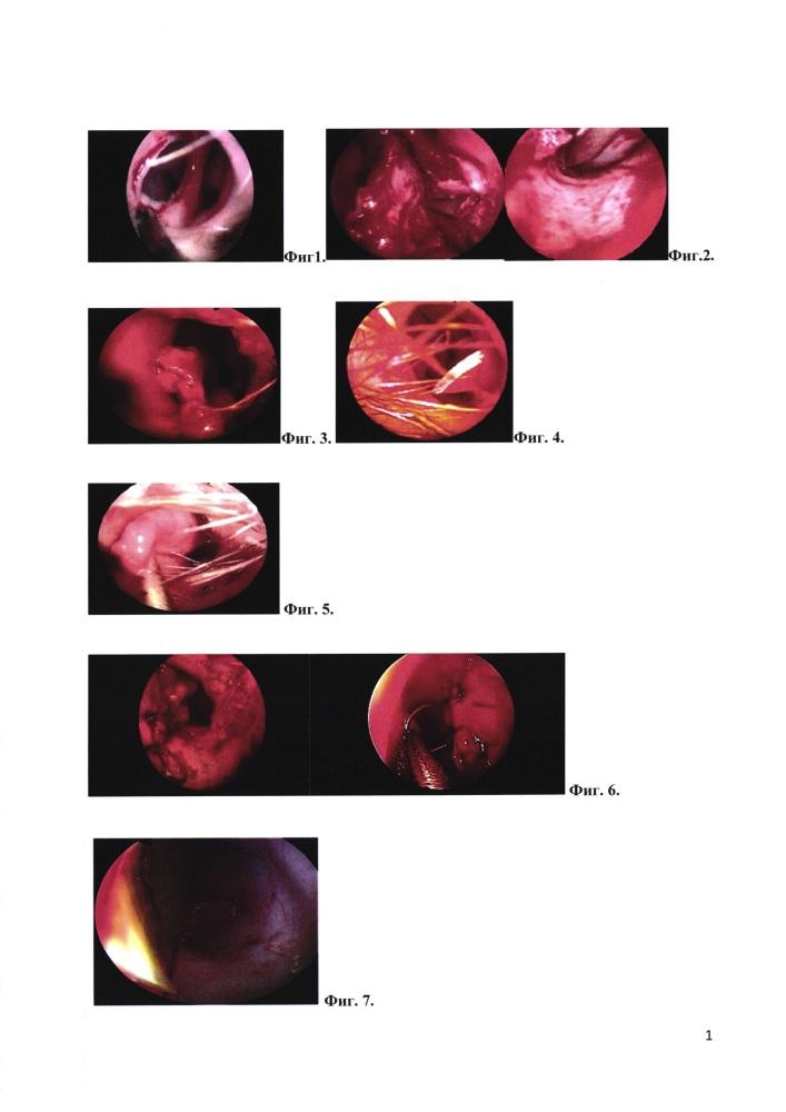 Способ пластического эндоскопического закрытия перфорации перегородки носа у детей