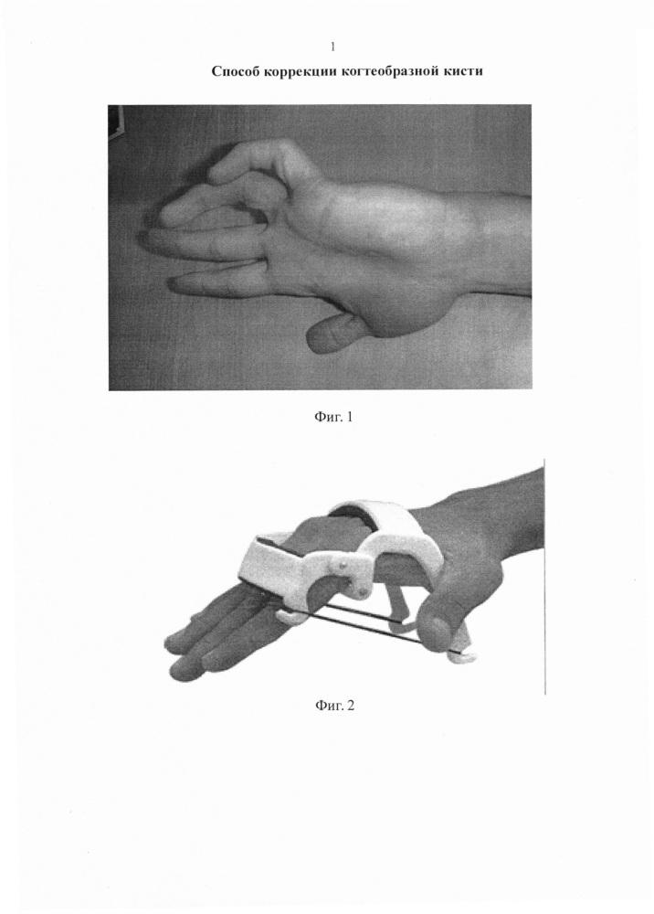 Способ коррекции когтеобразной кисти