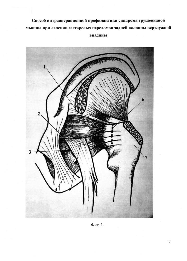 Способ интраоперационной профилактики синдрома грушевидной мышцы при лечении застарелых переломов задней колонны вертлужной впадины