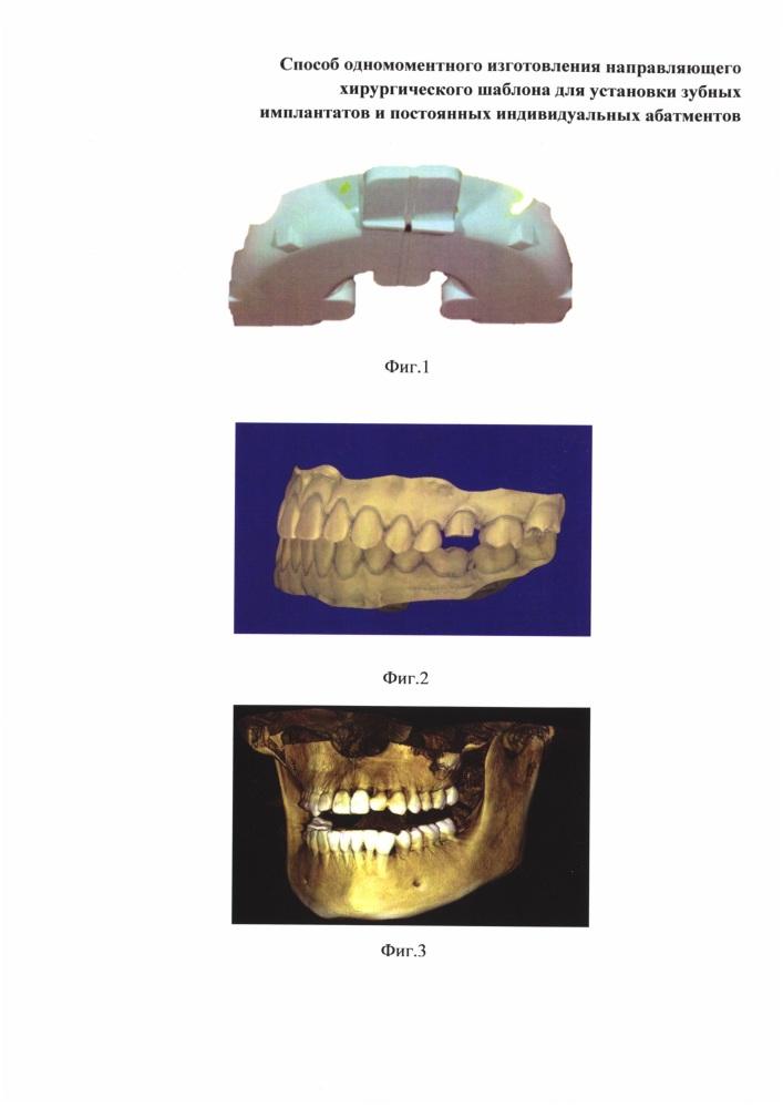Способ одномоментного изготовления направляющего хирургического шаблона для установки дентальных имплантатов и индивидуальных постоянных абатментов