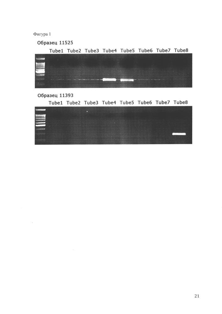 Способ определения маркеров наличия опухолевых т-лимфобластов