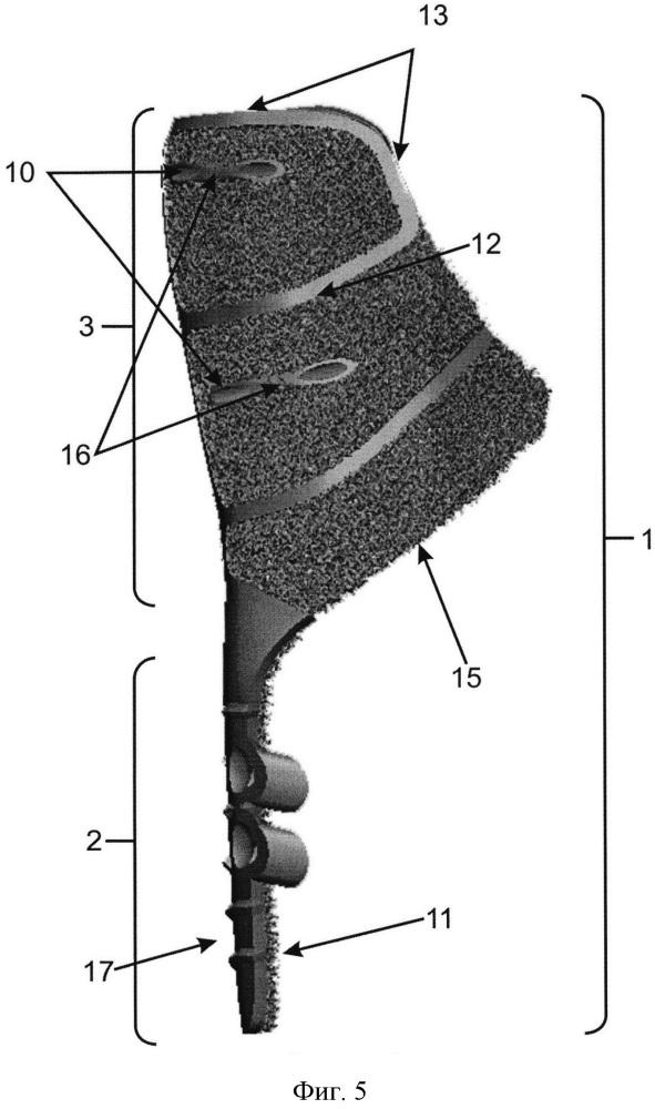 Устройство для замещения дефектов проксимального отдела бедренной кости при выполнении ревизионного эндопротезирования тазобедренного сустава