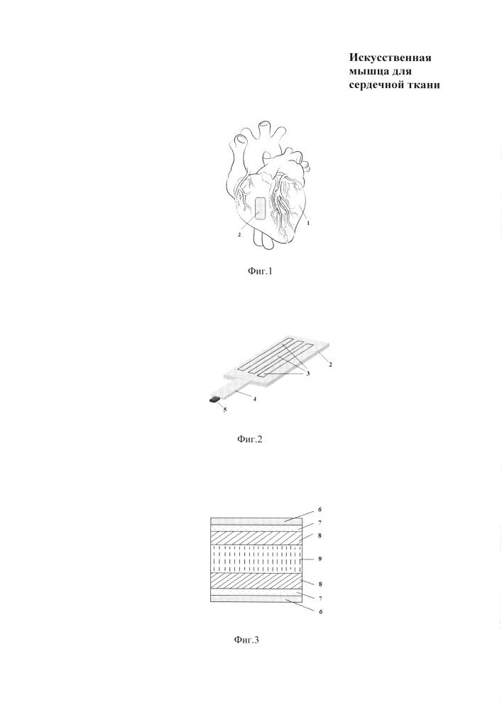 Искусственная мышца для сердечной ткани