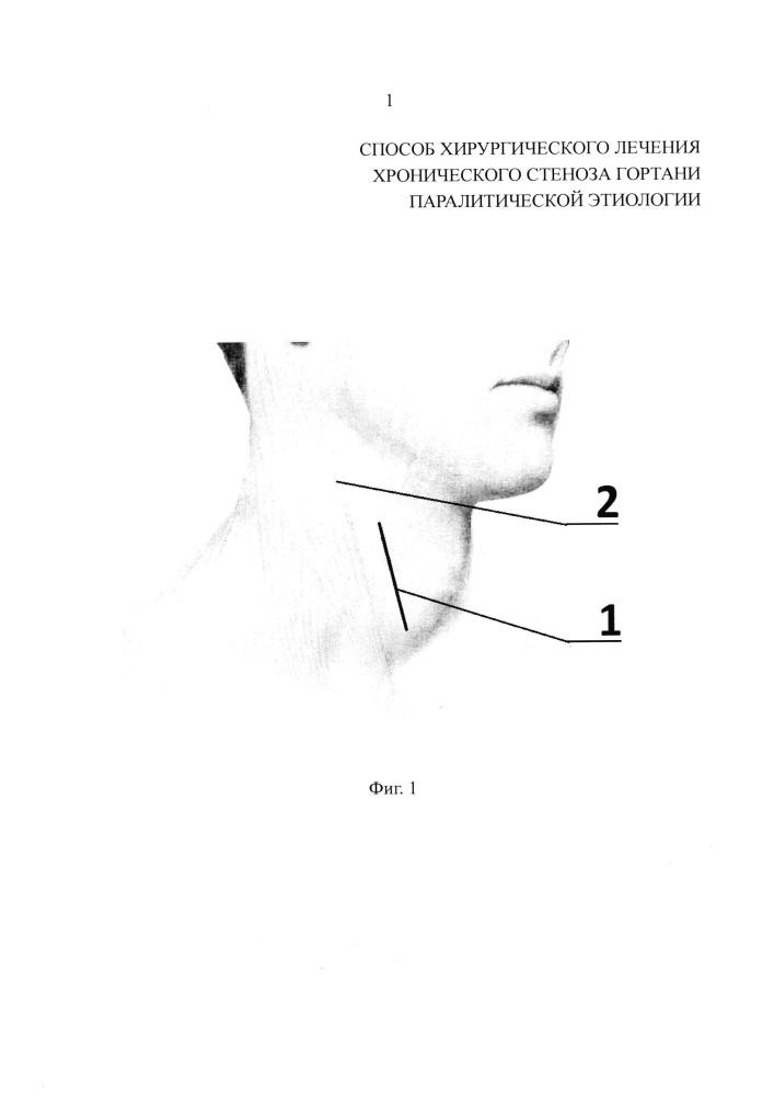 Способ хирургического лечения хронического стеноза гортани паралитической этиологии