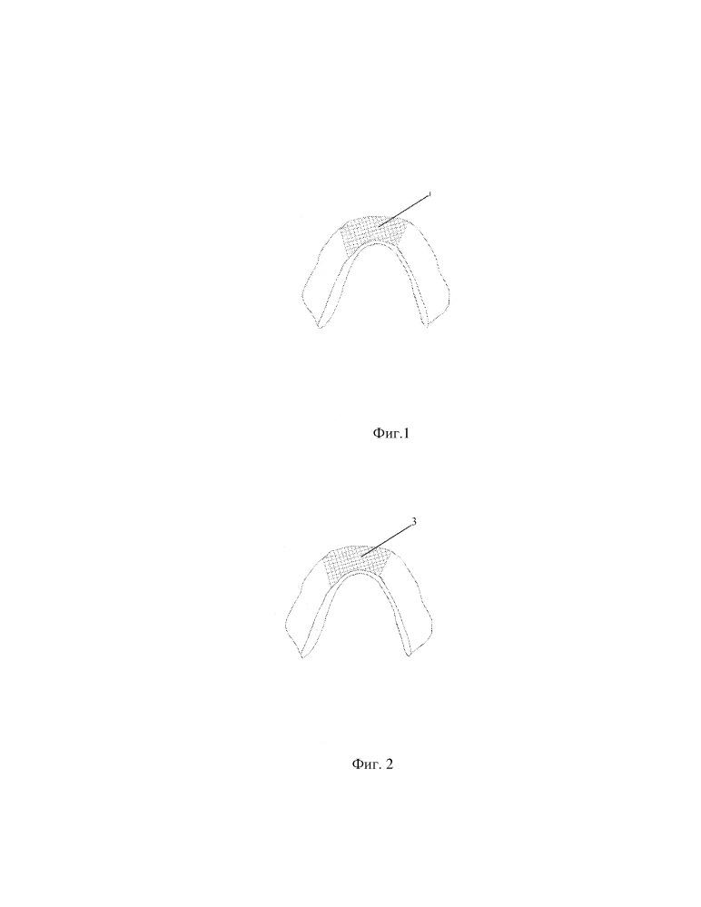 Иммедиат протез, применяемый в области фронтальной группы зубов верхней и нижней челюстей
