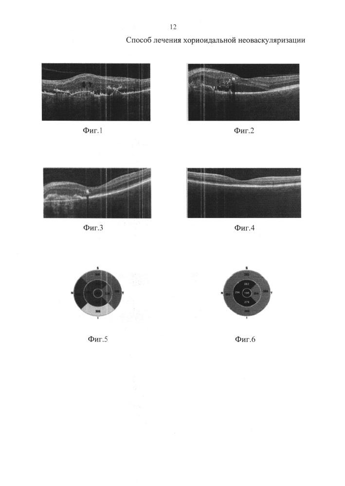 Способ лечения хориоидальной неоваскуляризации