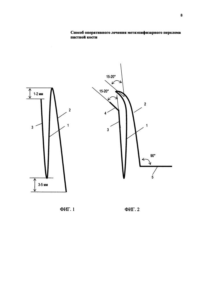 Способ оперативного лечения метаэпифизарного перелома пястной кости