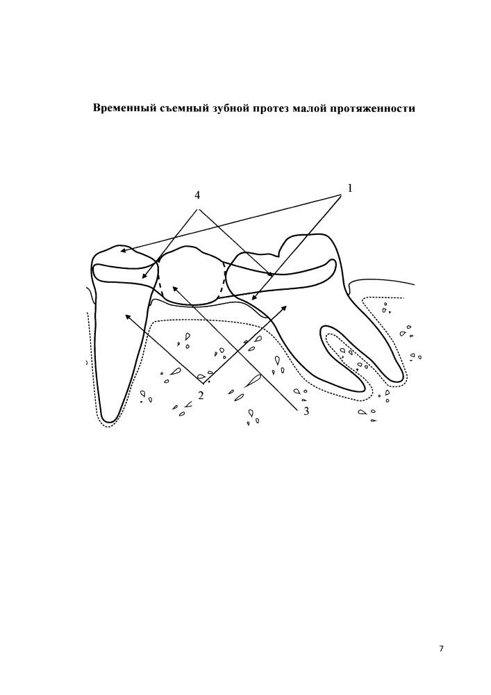 Временный съемный зубной протез малой протяженности